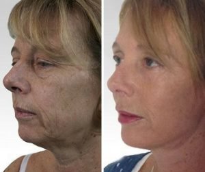 facelift surgery before and after photo UK
