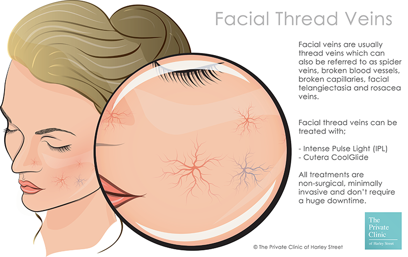 facial thread veins