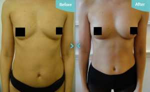 The treatment is ideal for restoring volume to the breasts, whilst toning other areas.