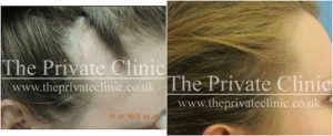 female-hair-transplant-before-after-1-the-private-clinic