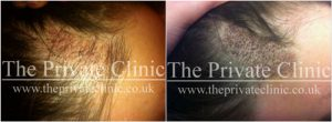female-hair-loss-before-after-2-the-private-clinic