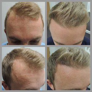 fue hair transplant before after photos