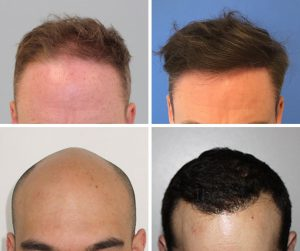 FUE Hair Transplant method before and after The Private Clinic