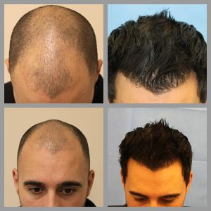 fue hair transplant frontal mid scalp anterior areas 2307 grafts before after photos