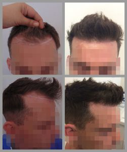 fue hair transplant hairline area 2000 hairs before after photos