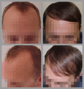 fue hair transplant hairline area before after photos