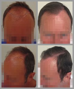 fue hair transplant hairline temples areas 3500 hairs before after photos