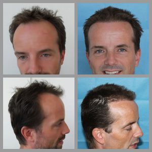 fue hair transplant hairline temples frontal areas 1112 grafts before after photos