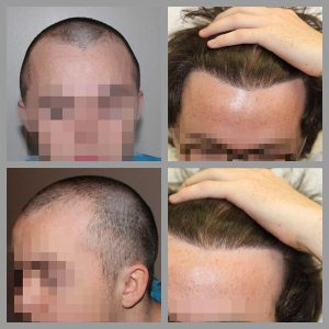 fue hair transplant mid scalp anterior frontal hairline areas treated 1020 grafts before after photos
