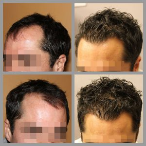 fue hair transplant mid scalp vertex temples areas treated 1200 grafts before after photos