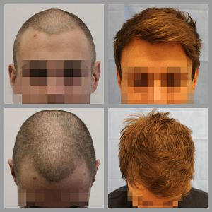 fue hair transplant mid scap anterior frontal hairline areas 800 grafts before after photos