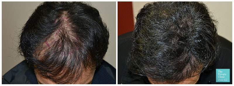 hair transplant crown area before after photo results