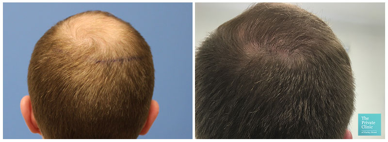 hair transplant crown before after photo results
