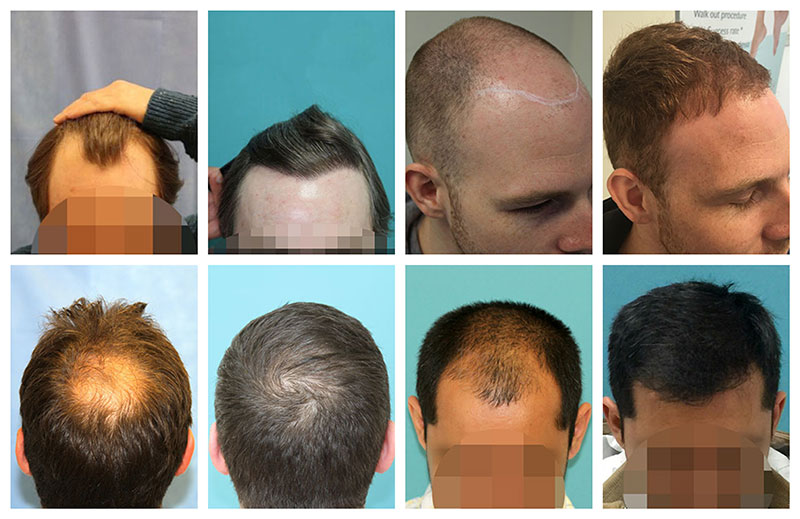 FUE hair-transplant results before after photos