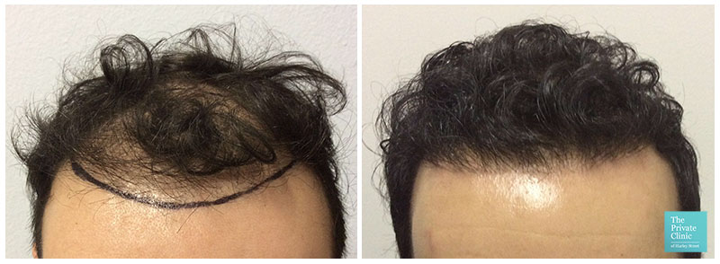 fue-hair-transplant london before after photo results