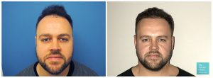 hair transplant hairline restoration before after photo results