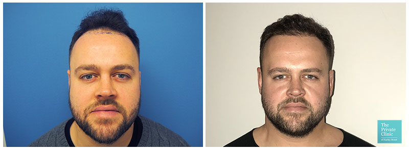 hair transplant restoration hairline before after photo results