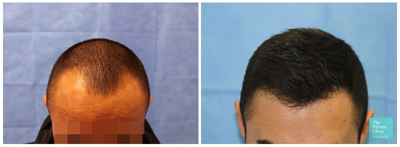 fue hair transplant hairline before after photo results