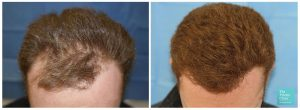 FUE hair transplant temples top area before and after photo