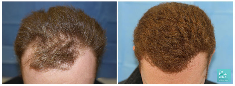 hair transplant before after photo results hairline-raghu reddy