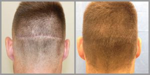 fue hair transplant scar repair 207 grafts before after photos