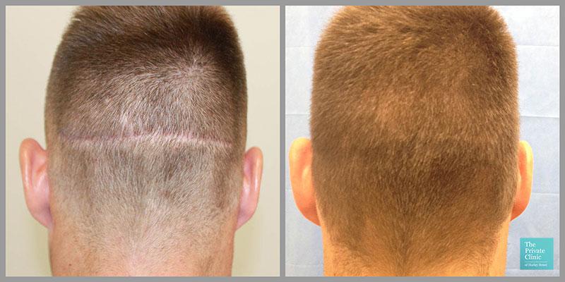 fue hair transplant scar repair before after photo london harley street