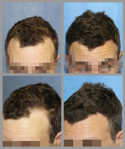 fue hair transplant temples hairline area 890 graft before after photos