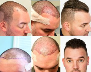 hair transplant FUE procedure before and after photos hair restoration doug