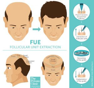 hair transplant donor areas front crown FUE method