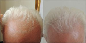 hair-transplant-before-after-the-private-clinic-web