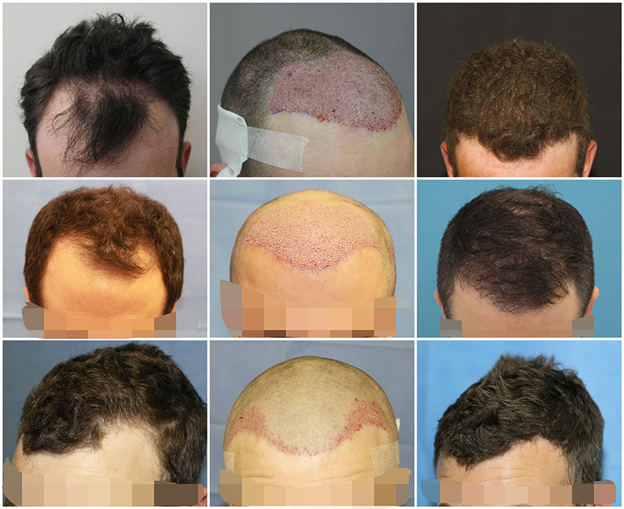 Hair Transplant before and after photos UK