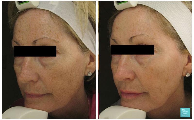 Laser Skin Resurfacing before after photo