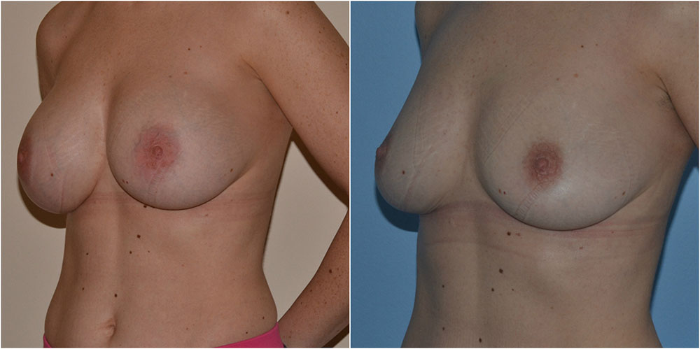 implant-removal-before-after-adrian-richards-the-private-clinic-web