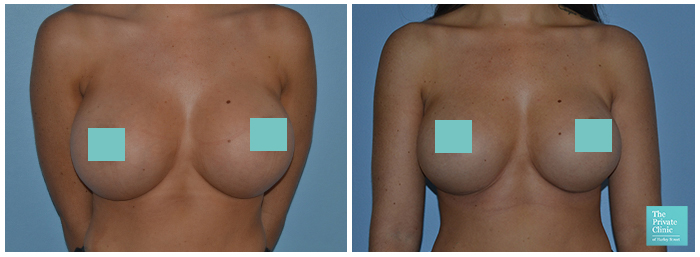 breast implant exchange london before and after photo