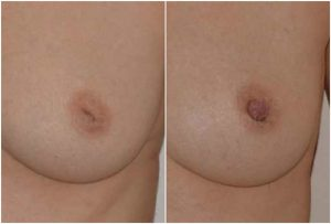 inverted-nipple-before-after-adrian-richards-aurora-clinics-part-of-the-private-clinic