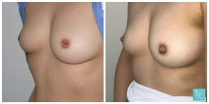 inverted nipple correction before after photos results