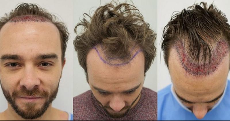 jack p shedherd fue hair transplant surgery procedure