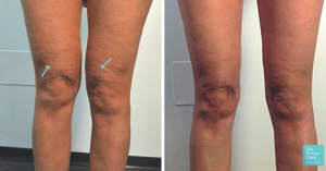 knee liposuction before after photo