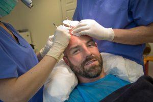 kris boyd hair transplant treatment private clinic