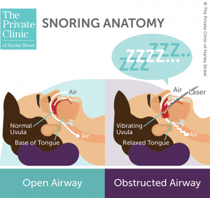 LAUP surgery stop snoring laser assisted uvulopalatoplasty