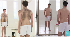 laser hair removal men before after photo