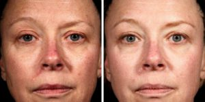 laser resurfacing treatment before after photo