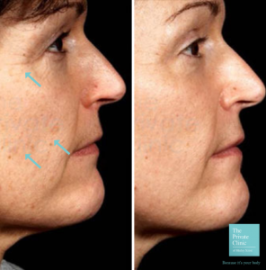 laser skin resurfacing before and after photo