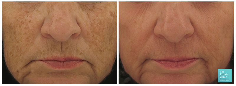 Laser skin resurfacing before after photo results