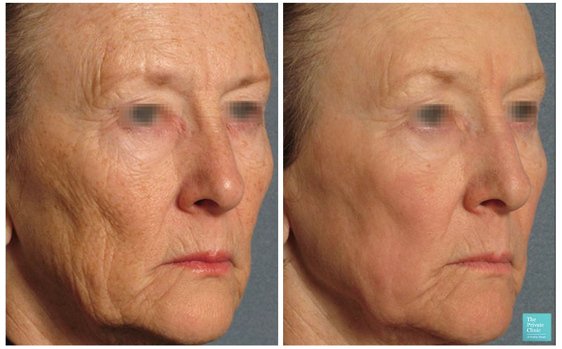laser skin resurfacing pearl fusion anti ageing before after results