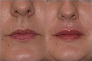 lip-filler-before-after-2-mel-the-private-clinic-web