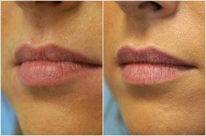 lip-filler-before-after-blog-mel-the-private-clinic-web