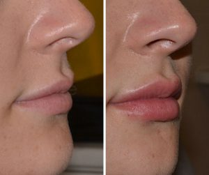 lip filler injections before after UK