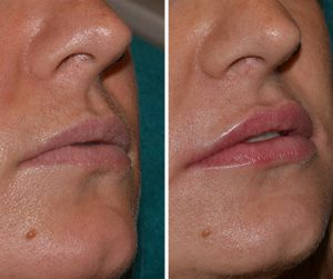 lip fillers before and after photo