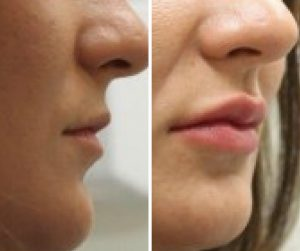 lip fillers before and after uk
